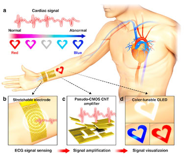 wearable-cardiac-monitor